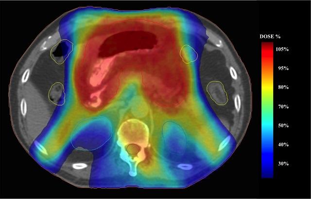 Radioterapia-low